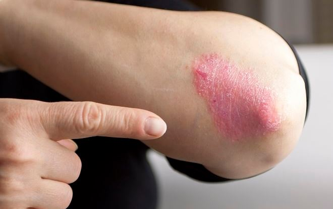 Combat Psoriasis With These 10 Natural Remedies